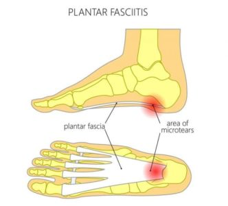 drawing showing where plantar fasciitis causes foot painb