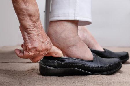 best shoes for swollen feet