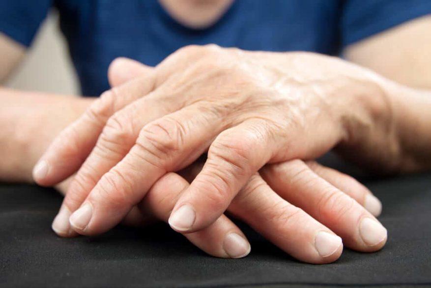 closeup of hands deformed by rheumatoid arthritis