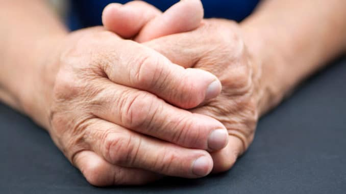 close up of hands with arthritic hand pain