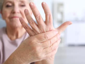 woman showing hand with arthritic joint pain
