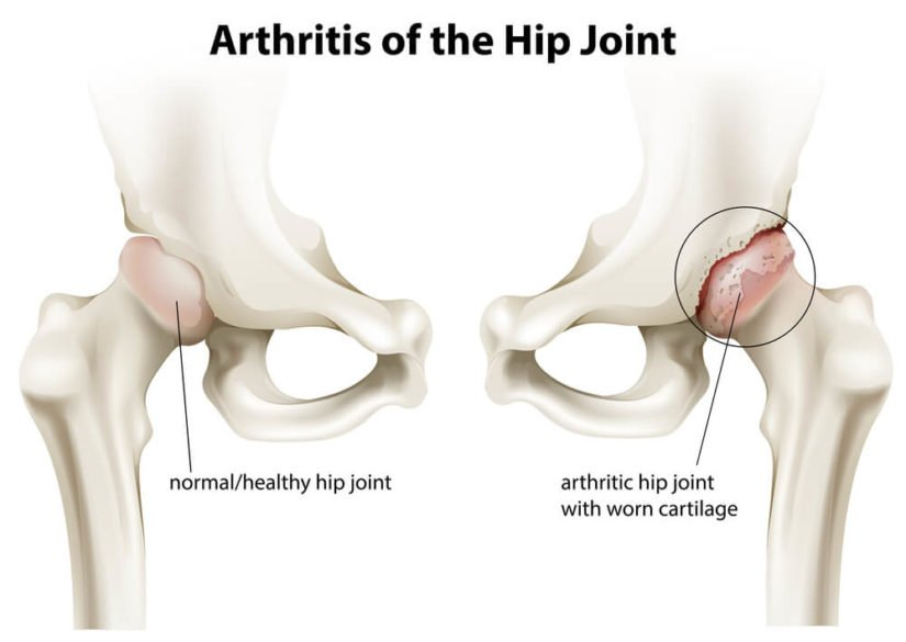 anatomical diagram showing arthritis in the hip joint