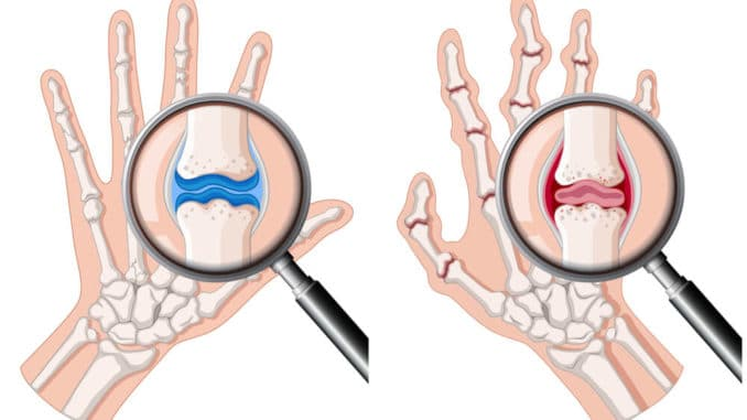 diagram of 2 hands showing inflammation from rheumatoid arthritis