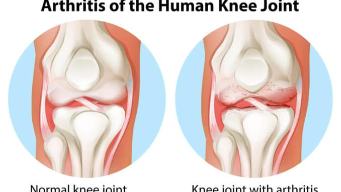 graphic comparing a normal knee joint and and arthritic knee joint