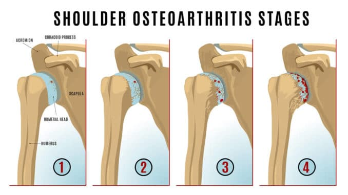 graphic showing the various stages of shoulder arthritis